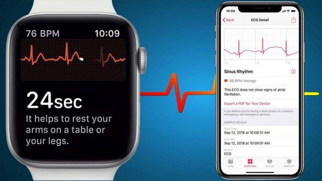 Apple Watch EKG uygulaması nasıl kullanılır